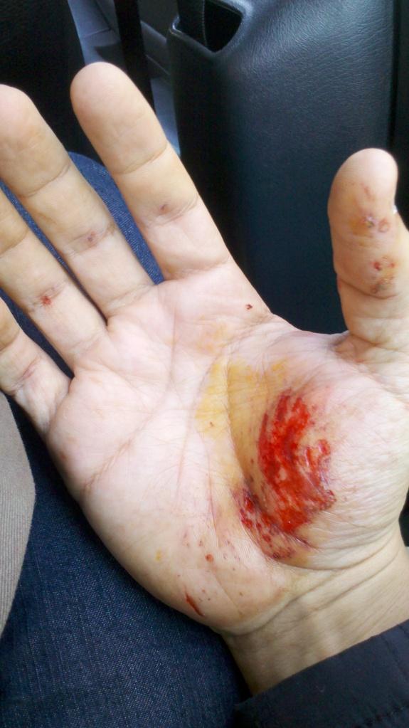 Acidente na ciclovia do Rio Pinheiros